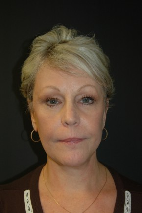 After Photo - Facial Rejuvenation - Case #3484 - Facelift, Fat Transfer, Lower Blepharoplasty - Frontal View