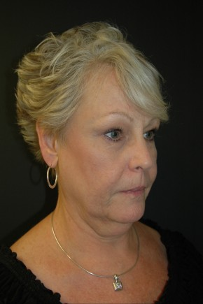 Before Photo - Facial Rejuvenation - Case #3484 - Facelift, Fat Transfer, Lower Blepharoplasty - Oblique View