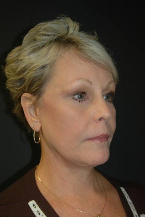 After Photo - Facial Rejuvenation - Case #3484 - Facelift, Fat Transfer, Lower Blepharoplasty - Oblique View