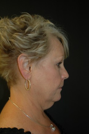 Before Photo - Facial Rejuvenation - Case #3484 - Facelift, Fat Transfer, Lower Blepharoplasty - Lateral View