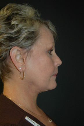After Photo - Facial Rejuvenation - Case #3484 - Facelift, Fat Transfer, Lower Blepharoplasty - Lateral View