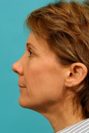 Before Photo - Facial Rejuvenation - Case #2541 - Lateral View