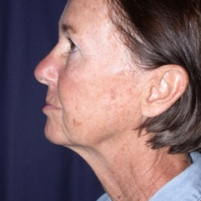 Before Photo - Facelift - Case #2516 - FaceLift- Minimal Access Cranial Suspension (MACS)/ Fat Grafting  - Lateral View