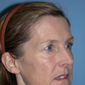 Before Photo - Facelift - Case #2626 - Lateral View