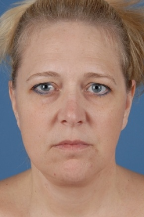 After Photo - Facelift - Case #2572 - Aesthetic Face - Frontal View