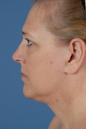 After Photo - Facelift - Case #2572 - Aesthetic Face - Lateral View