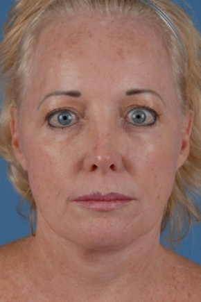 After Photo - Facelift - Case #2573 - Face and Neck - Frontal View