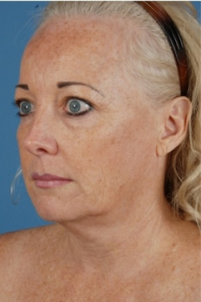 Before Photo - Facelift - Case #2573 - Face and Neck - Oblique View