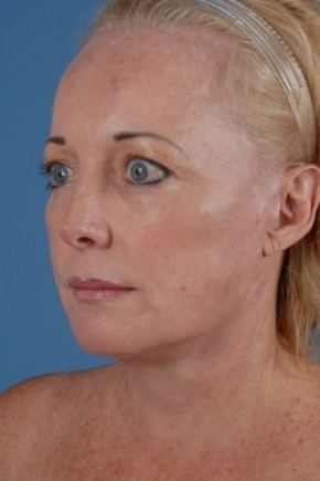 After Photo - Facelift - Case #2573 - Face and Neck - Oblique View