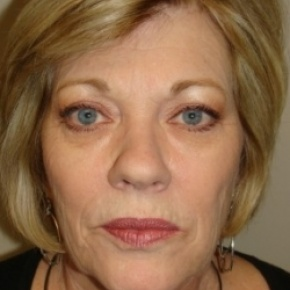 Before Photo - Facelift - Case #2582 - Frontal View