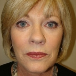 After Photo - Facelift - Case #2582 - Frontal View