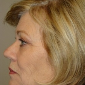 Before Photo - Facelift - Case #2582 - Posterior Oblique View