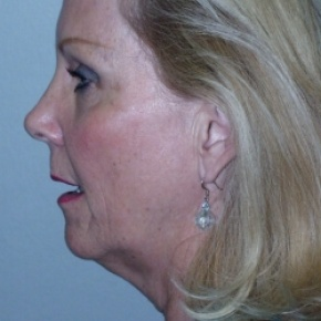 Before Photo - Facelift - Case #2673 - Face Lift  - Lateral View