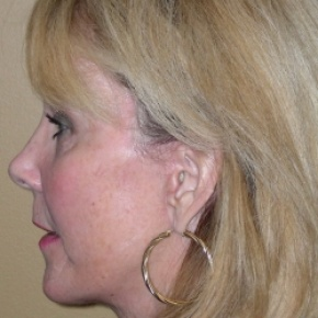 After Photo - Facelift - Case #2673 - Face Lift  - Lateral View