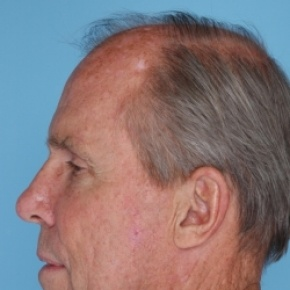 Before Photo - Facelift - Case #2708 - Lateral View