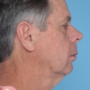 Before Photo - Facelift - Case #2709 - Lateral View
