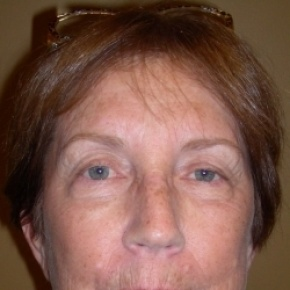 After Photo - Facelift - Case #2731 - Face and Browlift - Frontal View