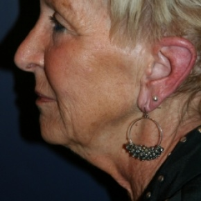 Before Photo - Facelift - Case #2889 - Face Lift - Lateral View