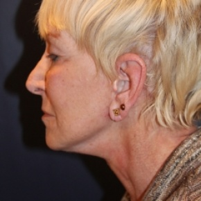 After Photo - Facelift - Case #2889 - Face Lift - Lateral View