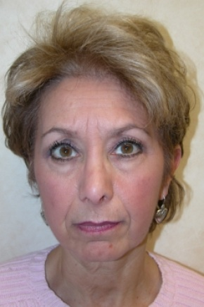 Before Photo - Facelift - Case #2969 - Frontal View