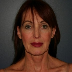 Before Photo - Facelift - Case #3426 - Frontal View