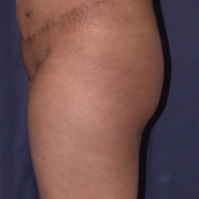 Before Photo - Fat Transfer - Case #2514 - Brazilian Buttock Lift - Lateral View
