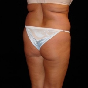 Before Photo - Fat Transfer - Case #2857 - Buttocks Augmentation Via Fat Grafting with Liposuction of Abdomen, Waist, Dorsal Roll, Inner and Outer Thighs - Posterior Oblique View