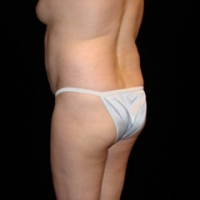 Before Photo - Fat Transfer - Case #2868 - Buttocks Augmentation Via Fat Grafting with Liposuction of Abdomen, Waist, Flanks, Dorsal Roll, Inner and Outer Thighs  - Posterior Oblique View