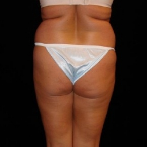 Before Photo - Fat Transfer - Case #2857 - Buttocks Augmentation Via Fat Grafting with Liposuction of Abdomen, Waist, Dorsal Roll, Inner and Outer Thighs - Posterior View