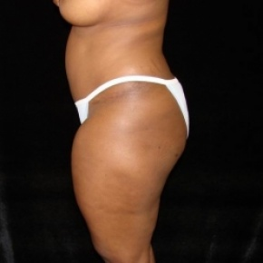Before Photo - Fat Transfer - Case #2879 - Buttocks Augmentation Via Fat Grafting with Liposuction of Abdomen, Waist, Flanks, Dorsal Roll, Inner and Outer Thighs - Lateral View