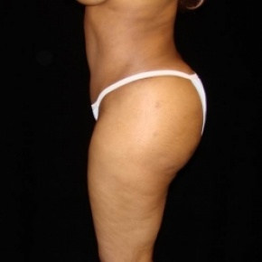 After Photo - Fat Transfer - Case #2885 - Buttocks Augmentation Via Fat Grafting with Liposuction of Abdomen, Waist, Flanks, Dorsal Roll, and Outer Thighs - Lateral View