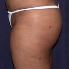 After Photo - Fat Transfer - Case #2514 - Brazilian Buttock Lift - Lateral View