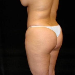 Before Photo - Fat Transfer - Case #2893 - Buttocks Augmentation Via Fat Grafting with Liposuction of Abdomen, Waist, Flanks, and Dorsal Roll - Oblique View