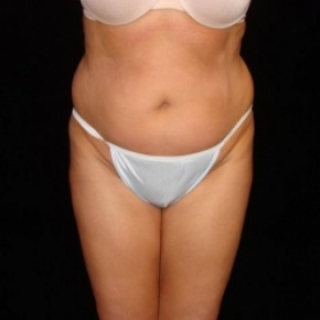 Before Photo - Fat Transfer - Case #2857 - Buttocks Augmentation Via Fat Grafting with Liposuction of Abdomen, Waist, Dorsal Roll, Inner and Outer Thighs - Frontal View
