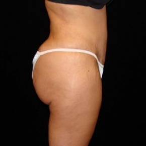 After Photo - Fat Transfer - Case #2861 - Buttocks Augmentation Via Fat Grafting with Liposuction of Abodmen, Waist, Flanks, Dorsal Roll, Inner and Outer Thighs - Lateral View