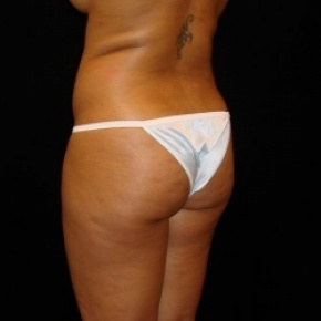 Before Photo - Fat Transfer - Case #2862 - Buttocks Augmentation Via Fat Grafting with Liposuction of Abdomen, Waist, Flanks, Dorsal Roll, Inner and Outer Thighs  - Oblique View