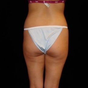 Before Photo - Fat Transfer - Case #2863 - Buttocks Augmentation Via Fat Grafting with Liposuction of Abdomen, Waist, Flanks, Dorsal Roll, and Inner Thighs  - Posterior View