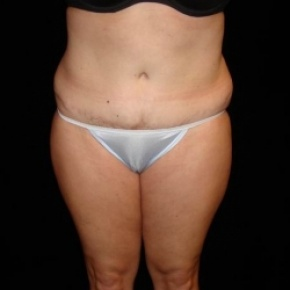 Before Photo - Fat Transfer - Case #2864 - Buttocks Augmentation Via Fat Grafting with Liposuction of Abdomen, Waist, Flanks, Dorsal Roll, Inner and Outer Thighs  - Frontal View