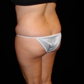 Before Photo - Fat Transfer - Case #2864 - Buttocks Augmentation Via Fat Grafting with Liposuction of Abdomen, Waist, Flanks, Dorsal Roll, Inner and Outer Thighs  - Oblique View