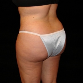 After Photo - Fat Transfer - Case #2864 - Buttocks Augmentation Via Fat Grafting with Liposuction of Abdomen, Waist, Flanks, Dorsal Roll, Inner and Outer Thighs  - Oblique View