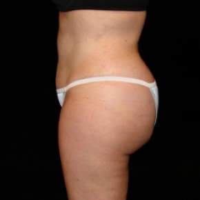 After Photo - Fat Transfer - Case #2864 - Buttocks Augmentation Via Fat Grafting with Liposuction of Abdomen, Waist, Flanks, Dorsal Roll, Inner and Outer Thighs  - Lateral View