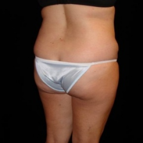 Before Photo - Fat Transfer - Case #2864 - Buttocks Augmentation Via Fat Grafting with Liposuction of Abdomen, Waist, Flanks, Dorsal Roll, Inner and Outer Thighs  - Posterior Oblique View
