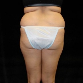 Before Photo - Fat Transfer - Case #2866 - Buttocks Augmentation Via Fat Grafting with Liposuction Abdomen, Waist, Flanks, Dorsal Roll, Inner and Outer Thighs - Posterior View