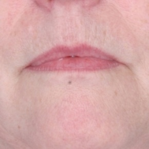 Before Photo - Fillers - Case #2628 - Injectables - Frontal View