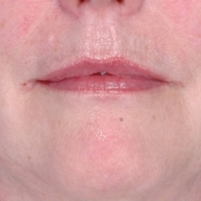 After Photo - Fillers - Case #2628 - Injectables - Frontal View