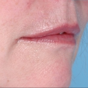 After Photo - Fillers - Case #2628 - Injectables - Oblique View