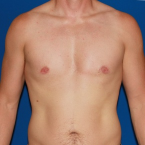 After Photo - Gynecomastia - Case #2782 - Gynecomastia male breast reduction - Frontal View