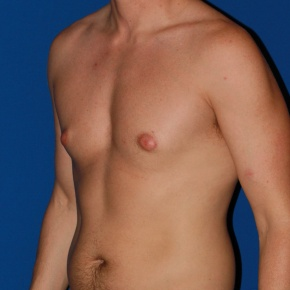 Before Photo - Gynecomastia - Case #2782 - Gynecomastia male breast reduction - Oblique View