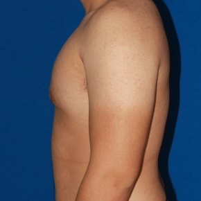 After Photo - Gynecomastia - Case #2783 - Gynecomastia male breast reduction - Lateral View