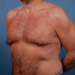 Before Photo - Gynecomastia - Case #2584 - Gynecomastia Treatment - Oblique View